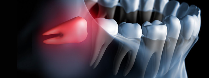 Chirurgia stomatologiczna Częstochowa