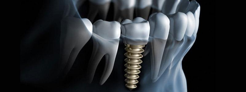 implanty zębów Częstochowa