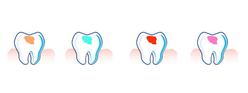 Kolorowe wypełnienia zębów