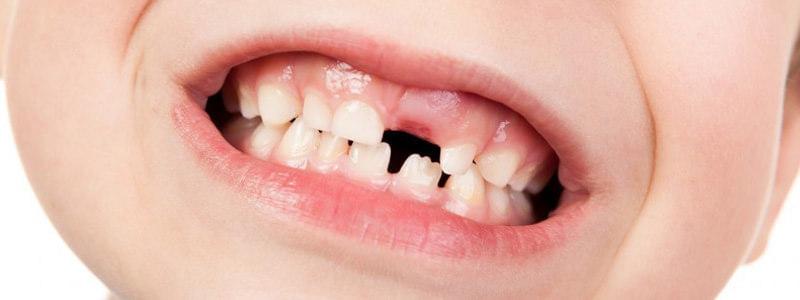 leczenie urazów zębów Częstochowa