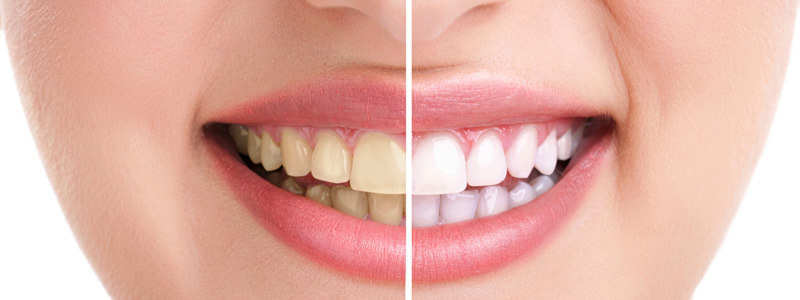 wybielanie zębów Częstochowa