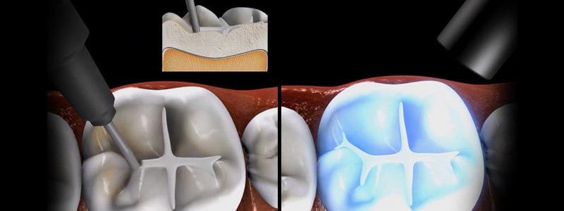 lakowanie zębów u dzieci