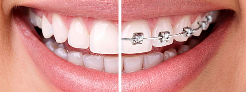 ortodonta Częstochowa