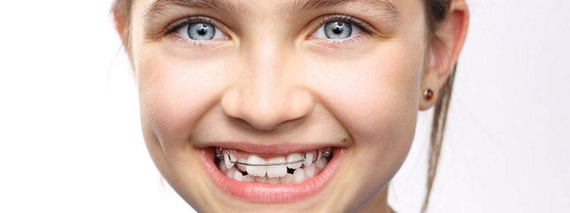 ortodoncja dziecięca Częstochowa