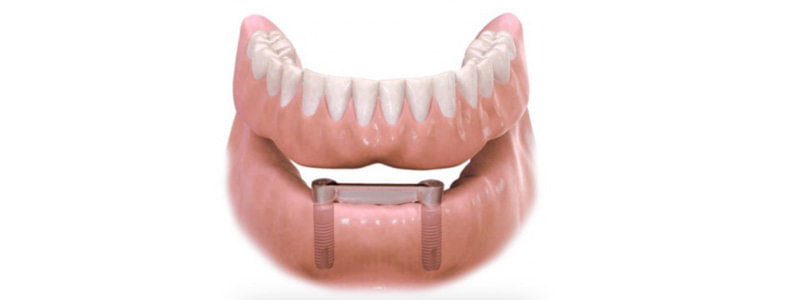 Proteza overdenture na implantach