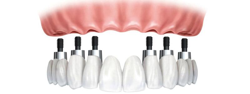 Struktura na implantach